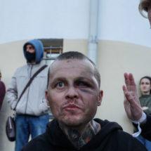 Несколько историй граждан, прошедших ужасы Окрестина